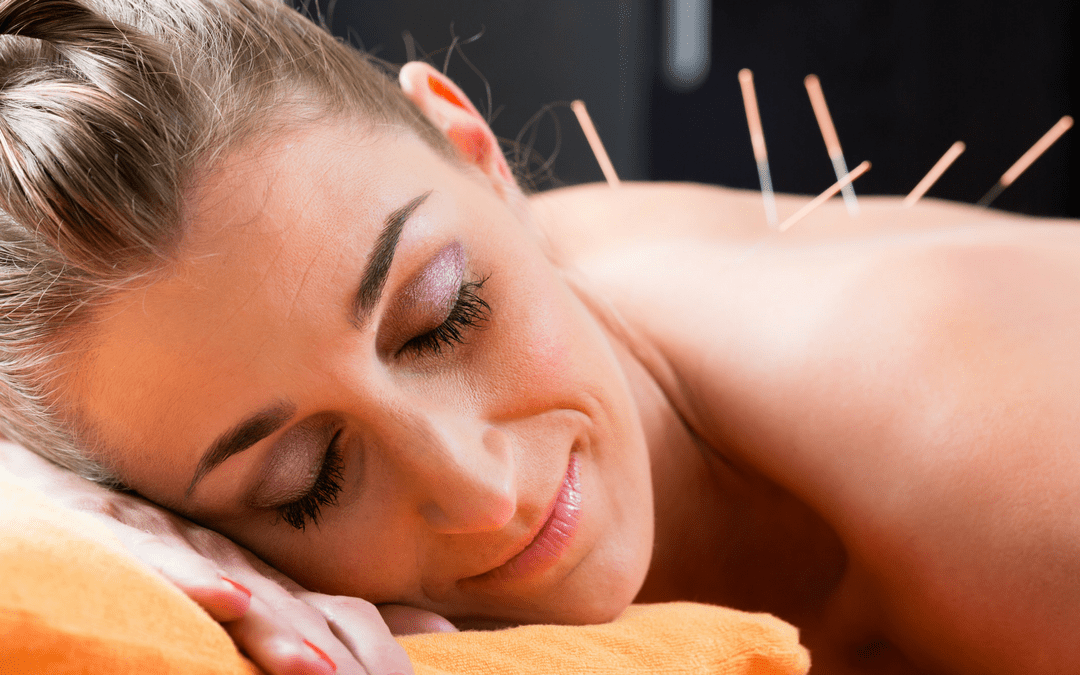 6 reasons acupuncture boosts your fertility